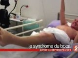 syndrome guillain-barré le syndrome du bocal  D.Pujadas