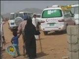 أمرأة تفقد بصرها بسبب الإرهابيين الحوثيين