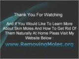 Skin Moles And Apple Cider Vinegar
