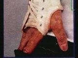 michael jackson vitiligo