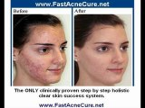 Acne Home Remedies - Acne Remedies (Acne Home Remedies)