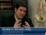 Escondido Slip and Fall Lawyer Describes Premise Liability