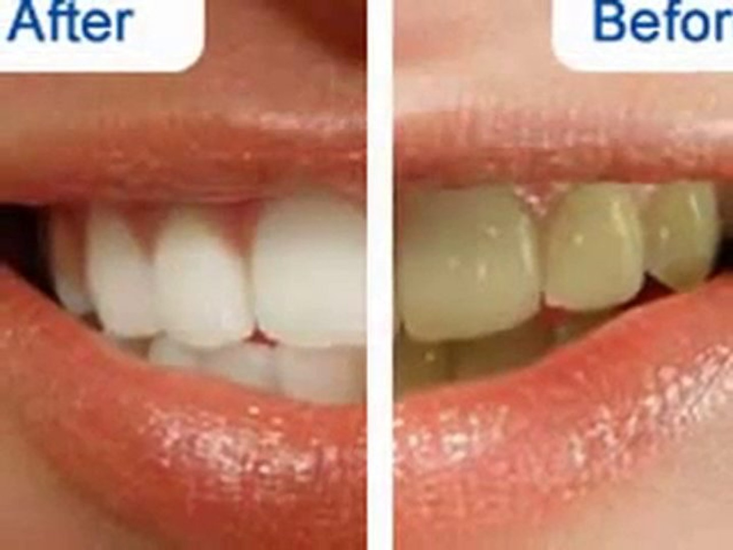 Crest Supreme Whitestrips Before And After Results Video Dailymotion