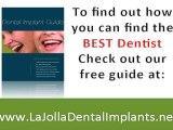 """Dental Implant Dentist, LaJolla Dentists, San Diego"""