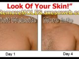 Wipe Out Your Skin Moles | Vanish your moles in just 3 days