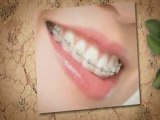 Winchester Va Dentists : Invisalign Braces