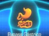 Cirugia Bariatrica Obesidad