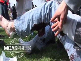 SOMMET OTAN : Bléssé par grenades assourdissante