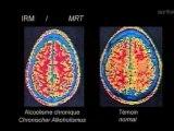 Drogues et cerveau - Le Tabac et l'Alcool - 2-3