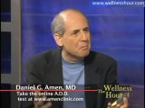 Dr. Daniel Amen - What You Need to Know About ADD