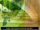 stretch mark removers – removing stretch mark – stretch mark remover