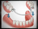 Calgary Dentures - Learn More About Your Calgary Dentures Options