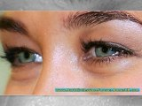 dark circles treatment - dark circles around eyes - how to remove dark circles