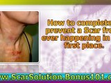 how to get rid of pimple scars - how to get rid of scars - home remedies for acne scars