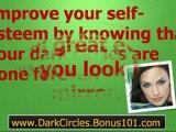 dark circles under eyes treatment - how to remove dark circles - home remedies for dark circles