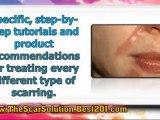 scar treatment reviews - best scar treatment - treatment for scars