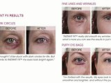 Skin Physics Instant FX - Remove Eye Wrinkles