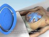 Open Abdomen Negative Pressure Therapy System   ABThera   KCI