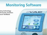 Negative Pressure Wound Therapy (NPWT) System   SensaT.R.A.C.   KCI