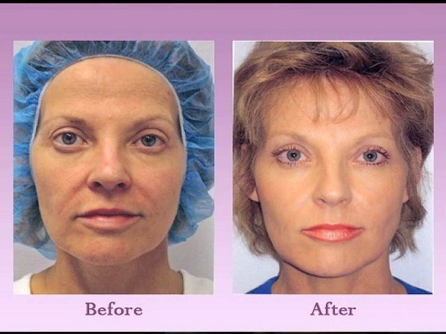 Austin Non Surgical Face Lift – How Does the Thread Lift Procedure Work?