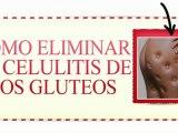 Como Eliminar la Celulitis  de los Gluteos-Como Eliminar la Celulitis Rapidamente