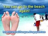 nail fungus cure, how to cure nail fungus