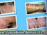 lupus skin diaease - lupus sleep problems - lupus symptoms