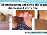how to treat nail fungus - nail fungus home remedy - cure for nail fungus