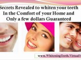 home remedies for teeth whitening - home remedies for whiter teeth
