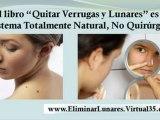 eliminar verrugas - como eliminar verrugas - verrugas plantares
