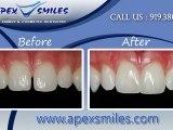 Dentist Apex NC | Implant Dentistry Apex NC | Dental Clinic Apex NC