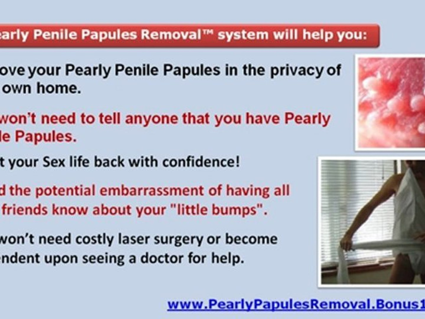 Papules penile why pearly you get do I'm 12,