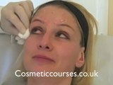 Botox training 3_ Botox injection demonstration on Anna