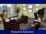 Implant Dentist Bell CA, Dentures, Dental Implant Bell Gardens, Maywood Dental Crown