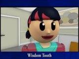 Longview WA Dentist, Wisdom Tooth Extraction Carrolls, Oral Surgeon Longview WA