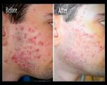 Help With Pimples Fast Way To Get Rid Of Acne How To Get Rid Of A Zit Fast Cures For Blackheads