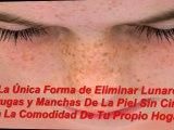 para quitar las manchas de la piel - quitar manchas de la piel - eliminar manchas en el rostro