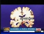 Alzheimer: Epidemia global (Facundo Manes)