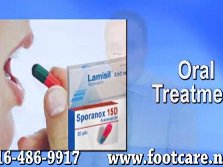 Fungal Toenails - Toronto, Podiatrist, foot Doctor of Podiatric Medicine, Foot Specialist - Ontario