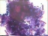 Coloration Gram d'une lame de l'échantillon témoin d'ensemencement des boues activées de Malt Europe par une boue activée au 1/1000e des bassins tampon