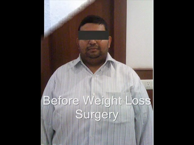 weight loss surgery | weight loss