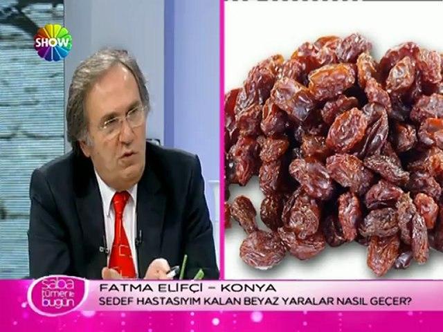 Prof. Dr. İbrahim Saraçoğlu - Topukdikeni için kür