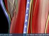 varicose vein treatment Barrington vein removal - Laser Vein Treatment