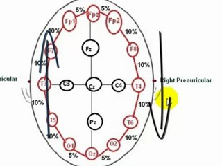 EEG,Understanding EEG - Part 4, 10 20 electrode placement system, What is electroencephalography (EEG)?