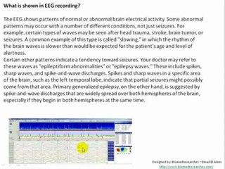 Understanding EEG- Part 6: More details, What is electroencephalography (EEG)?