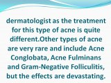 Different Acne Types Need Different Treatments