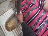 Chinois s'est bloqué la main dans les WC