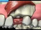 İmplant diş nasıl yapılır izle | www.implant-istanbul.com