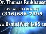 Cosmetic Dentist Wichita KS, Dental Veneer vs. Lumineer, Procelain Veneers 67206, Dentist Mcconnell, Dr. Fankhauser