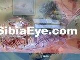 Eye Care Delray Beach, Delray Beach Eye Care, Delray Eye Care, Eye Exams Delray Beach, Delray Beach Eye Exams